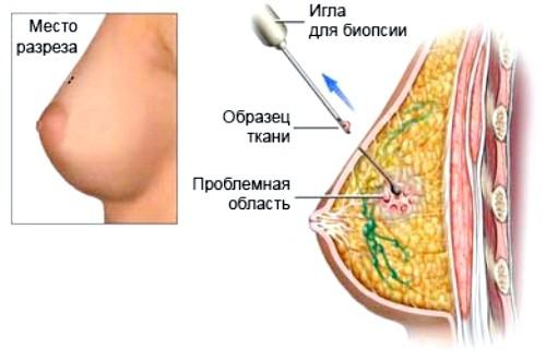 mozhno-li-fibroadenomu-vylechit-bez-operativnogo_4