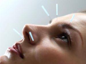 акупунктура точки на лице