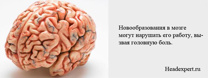 Новообразования в мозге могут нарушать его работу и вызывать головную боль