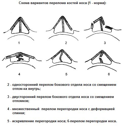 Разновидности перелома носа