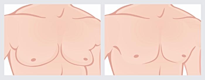 Як лікувати гінекомастію у чоловіків