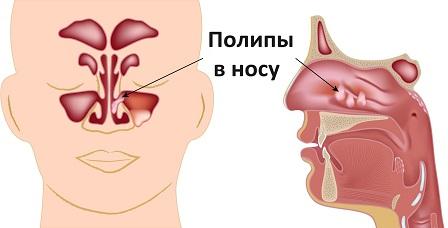 Расположение полипов в носу