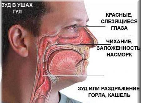 Основные признаки заболевания