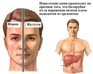 Повышен билирубин в крови