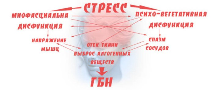 prichiny-golovnoj-boli-naprjazhenij_1