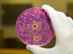 причины повышенных лейкоцитов в мазке