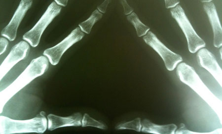 признаки ревматоидного артрита рук