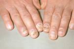 Псориаз на пальцах