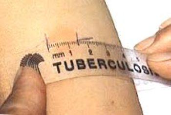 замер папулы после введения туберкулина