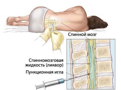 Люмбальная (спинномозкова) пункція