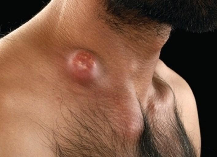 Опортуністичні інфекції при ВІЛ: що це таке і як лікувати
