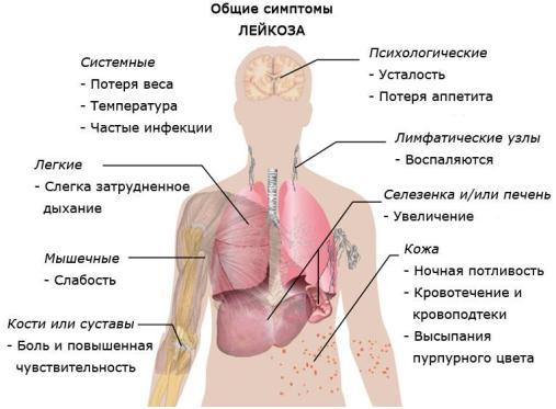 Симптомы острого лейкоза