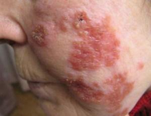 Lupus vulgaris - туберкулезная волчанка