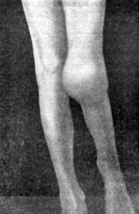 туберкулез коленного сустава