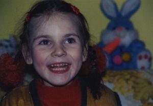 синдром ретта у девочки