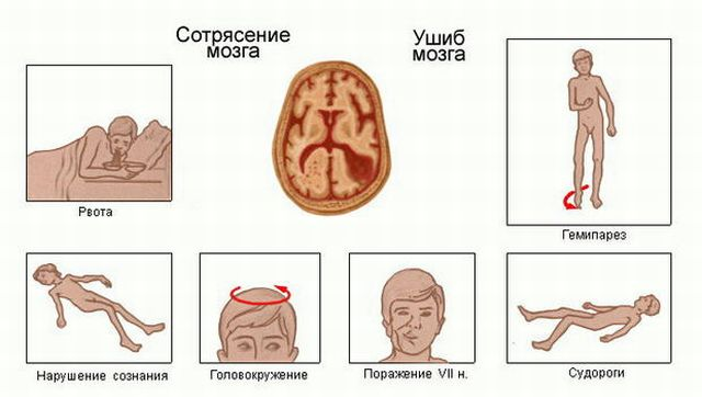симптоматика сотрясения