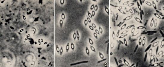 центрально расположенные споры бактерий