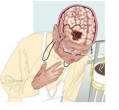 Инсульт - острое нарушение мозгового кровообращения