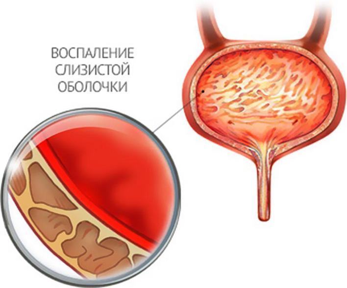 Часте сечовипускання у чоловіків: можливі причини