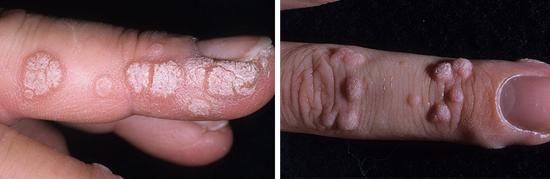 бородавки на пальцах рук