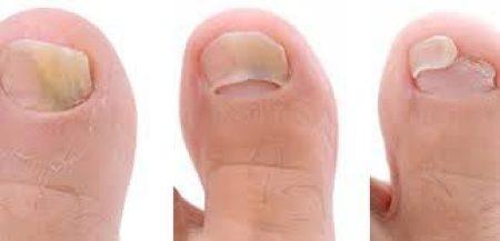 стадии грибка ногтей на ногах