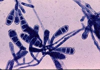 epidermophyton floccosum - грибок