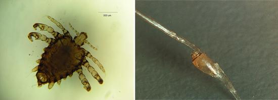 лобковая вошь (фото)