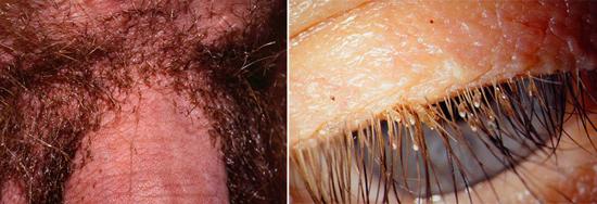 лобковые вши и гниды на волосах (фото)