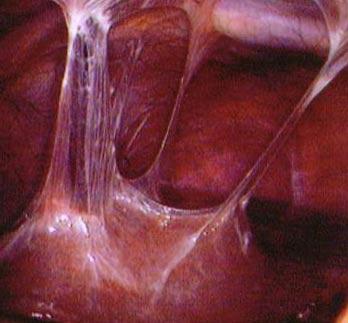 спайки в малом тазу у женщин при хламидиозе