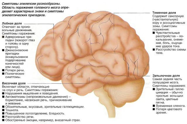 Виды эпилепсии