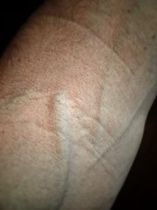 Picture of my arm veins