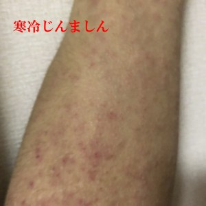 寒冷蕁麻疹