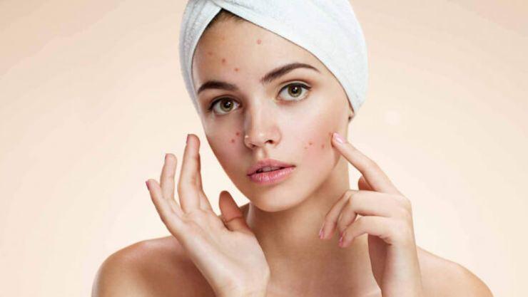 Rash and pimples-MegaloPreneur