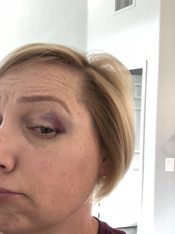 Ever find yourself with a black eye wondering how to get rid of it quickly? Here'a a few tips I found worked when I needed to get rid of a black eye. #blackeye