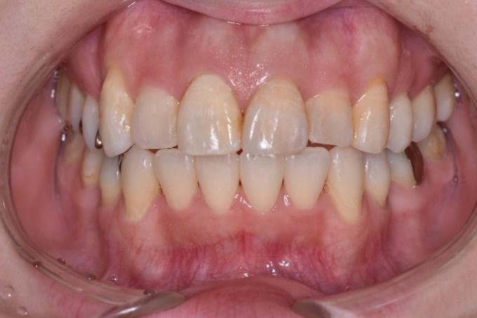 前歯の変色