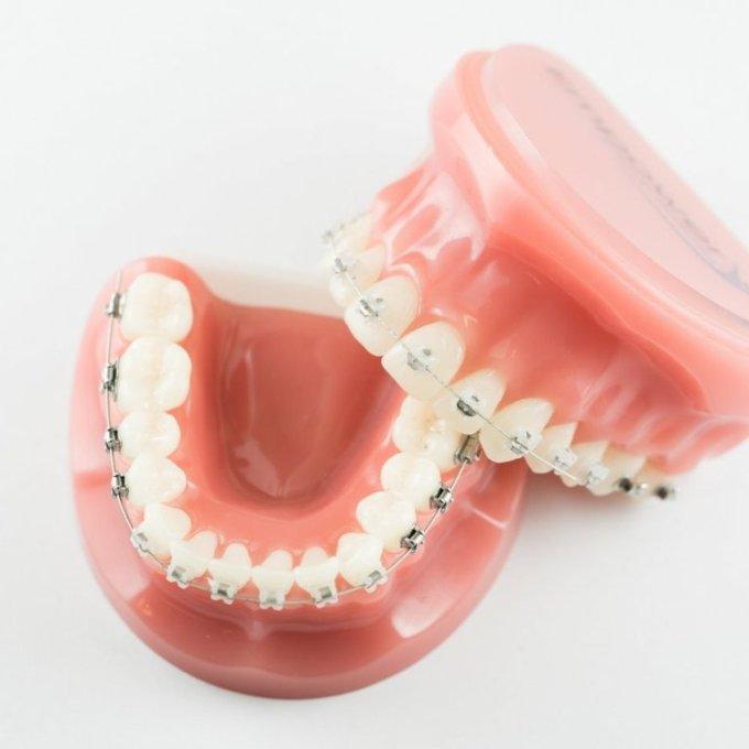 歯列矯正が予定よりも遅れている理由