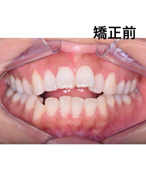 矯正治療をする前のお口の中の写真