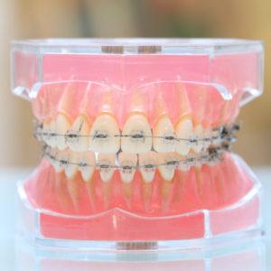 名古屋で歯列矯正をお考えなら名駅アール歯科・矯正歯科 : テスト