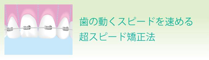 寿谷式 コルチコトミー矯正