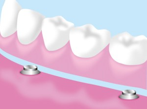 tooth_illust4_150
