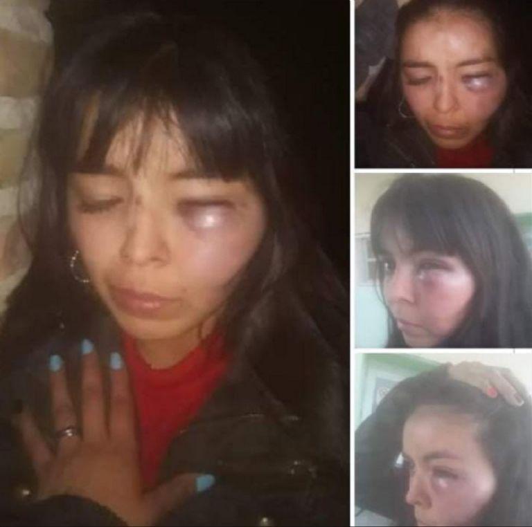 Machirulo: le pegó a la novia y se justificó con un video | Mejor Informado