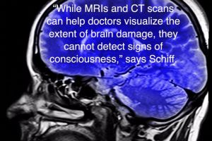 MRI's and CT scans can not determine consiciousness