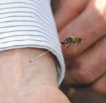 Μοναδική φωτογραφία με τσίμπημα μέλισσας