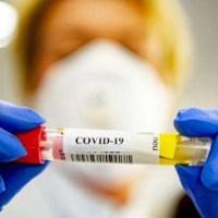 Coronavirus, Arzano: tutta la popolazione sottoposta a tampone
