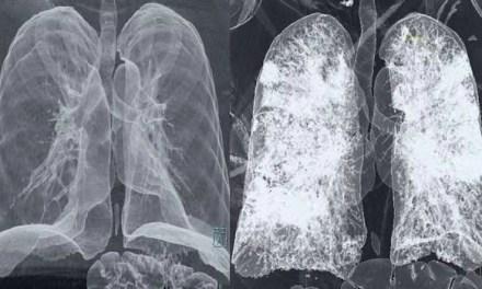 """Covid-19. La tac dei polmoni malati da mostrare """"a chi fa ancora il p***a"""""""