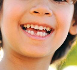 Bienvenido Ratoncito Pérez!: La caída del primer diente.