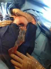 szakadt-szilikon-implantatum-mell