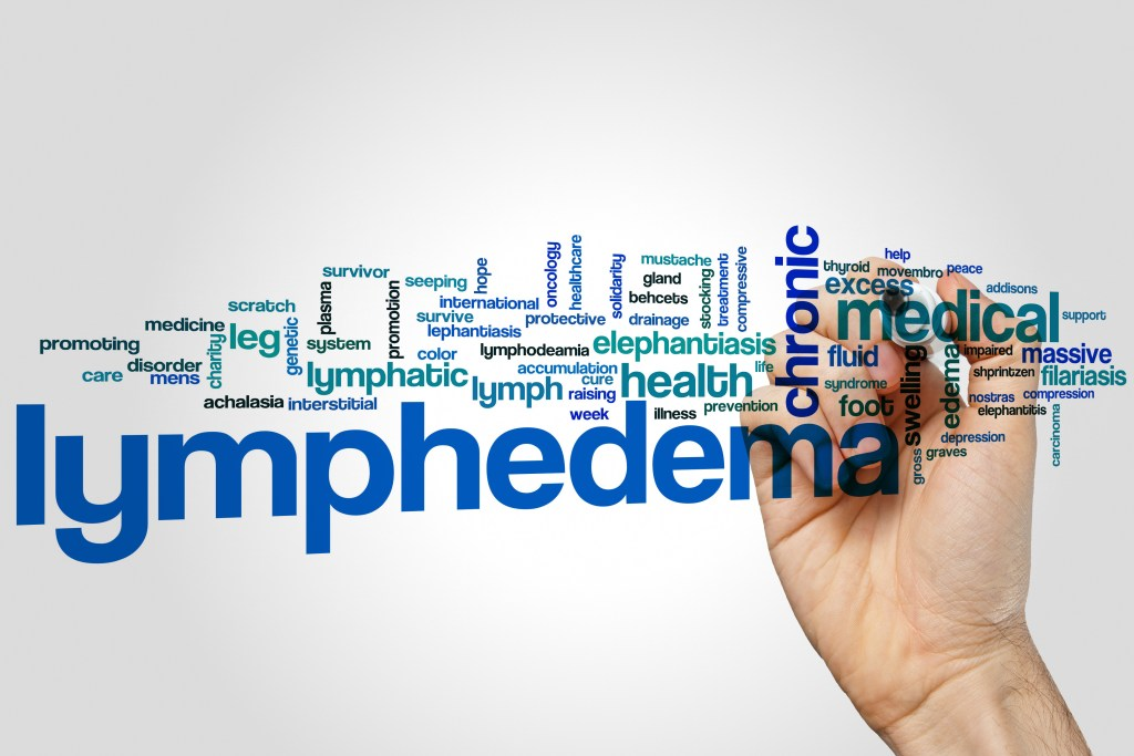 Ways to reduce risk of lymphedema – Memorial Radiation