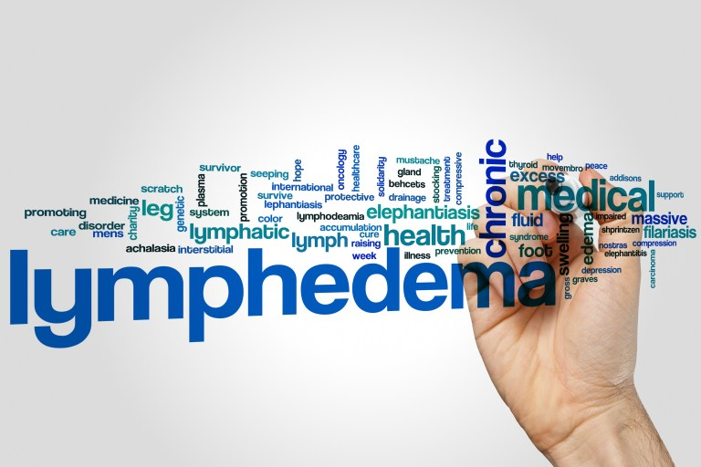 Treatment options for lymphedema