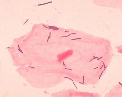 Bacterial vaginosis